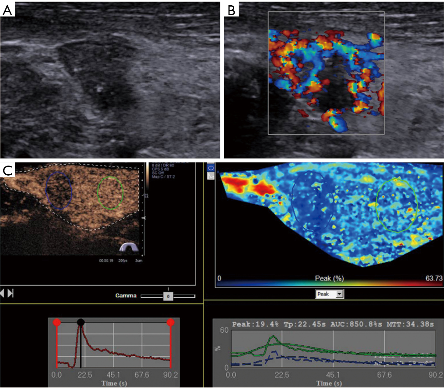 Quantification Of Solid Hypo Echoic Thyroid Nodule Enhancement
