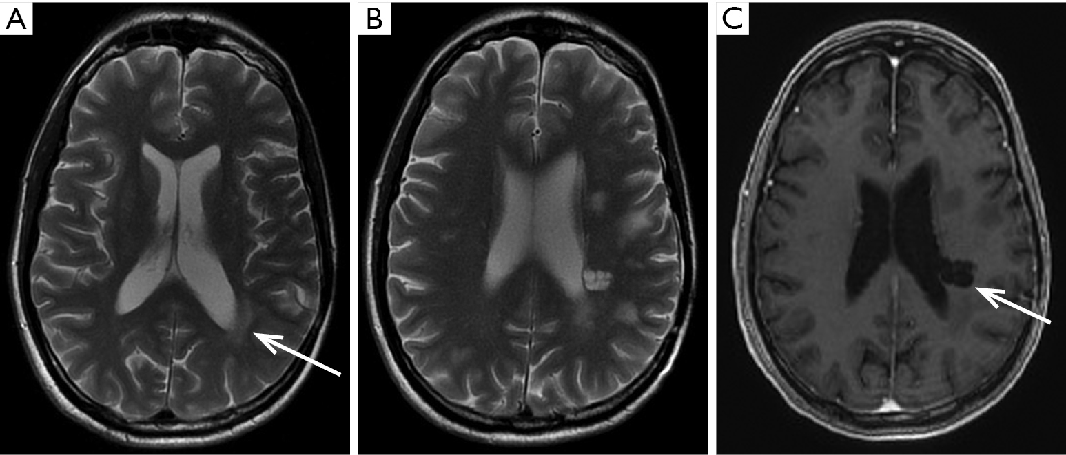 The Management Of Brain Necrosis As A Result Of Srs Treatment For