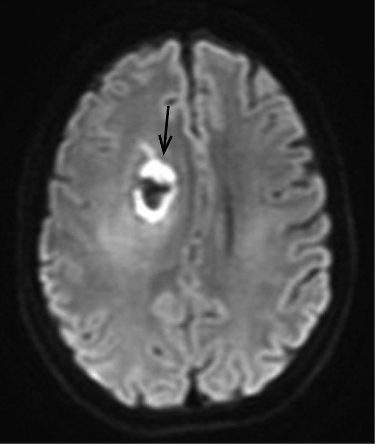 The management of brain necrosis as a result of SRS