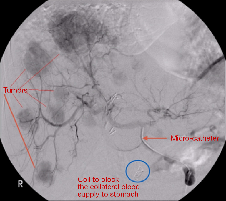 There Was A Coil Embolization Of The Left Gastric Artery To Prevent Delivery Y 90 Gastrointestinal System