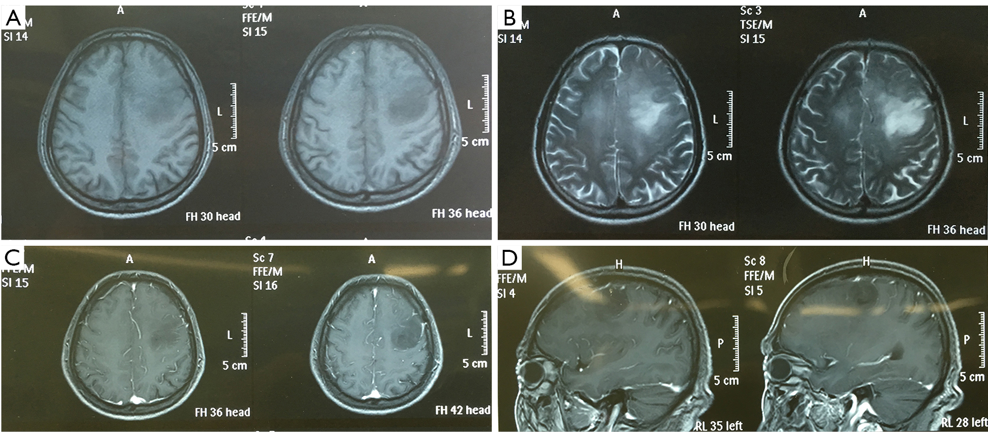 A case of brain glioma progression: surgical resection and post
